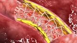 Video «Medikamente statt Stents – Wann kommt der Wandel?» abspielen