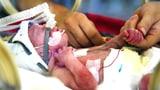 Video «Frühchen im Spital – Weniger Kabel, weniger Stress» abspielen