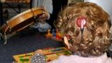 Video «Cochlea-Implantate» abspielen