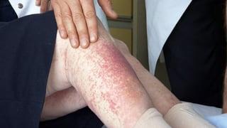Video «Antibiotika-Allergie, Chronischer Druck im Ohr, Aufklärung heute» abspielen