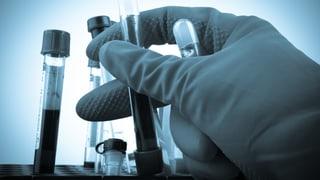 Auch in der Schweiz gibt es Fälschung und Manipulation in der Wissenschaft
