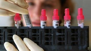 Keine Symptome heisst nicht kein HIV
