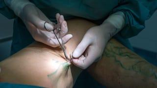 «Die Ärzte entscheiden über die Behandlung, nicht das Geld»