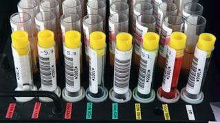 Hepatitis-C-Tests für alle