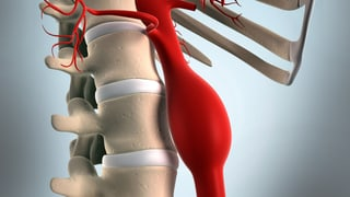 Video «Zeitbombe Aneurysma, Brustkrebs, Kinderprothesen, Gesund putzen» abspielen