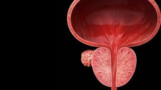 Prostatakrebs – Je mehr BAZ2A, desto bösartiger