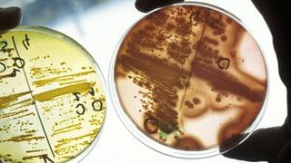 Biologischer Türsteher schützt den Darm
