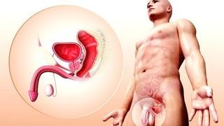 Prostatakrebs – Neue Chance für den PSA-Test
