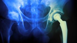 Video «Hüftprothesen, Früheinschulung, Schmerz, Knoblauch & Zwiebel » abspielen
