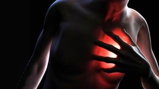 Herzinsuffizienz – Schwache Pumpe, schwacher Mensch