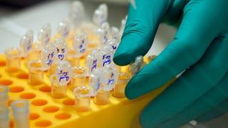 Forscher haben erstmals ein krankmachendes Gen aus einem Embryo entfernt