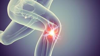 Video «Knieprothesen, Uhrzeit und Herzoperationen, Drohnen, «Hallo Puls»» abspielen