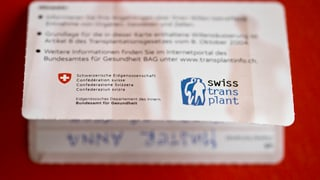 Kritik an Swisstransplant trotz Rekordzahlen