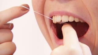 Zahnseide richtig benutzen