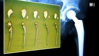Abrieb im künstlichen Gelenk - Partikel im natürlichen Gewebe