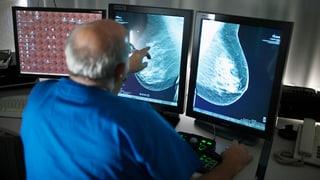 Intensivere Brustkrebs-Prävention für Luzerner Frauen
