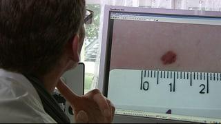 Künstliche Intelligenz erkennt Hautkrebs besser