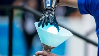 Intelligente Prothesen verändern unser Bild vom Menschen