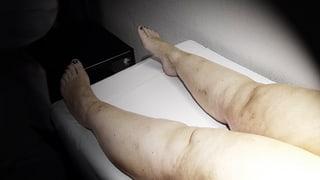 Video «Lipödeme, Strom gegen Hirntumore, Verwachsungen nach Knie-OP» abspielen