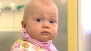 Schielen bei Kindern - Die Augen besser früh auf Achse bringen