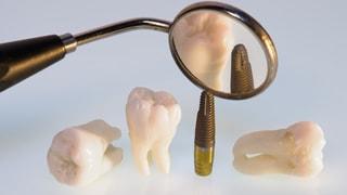 Zahnimplantate – Drei grosse Schritte zum neuen Gebiss