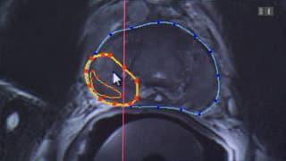 Ultraschall gegen Prostatakrebs