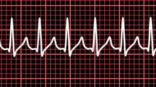 Video «Herzrasen, Neue Knieknorpel aus der Nase, Organspende-App» abspielen