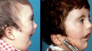Gianlucas Gesicht (1/3) - Entstellt ins Leben gestartet