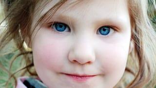 Körper Geist Schielen Bei Kindern Die Augen Besser Früh Auf