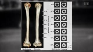 Sport stärkt Knochen dauerhaft