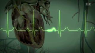Sechs Fragen zum Herzschrittmacher