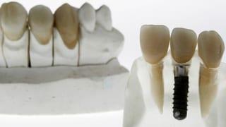 Video «Zahnimplantate, Impfkritische Pflegekräfte, Tiere im Altersheim» abspielen