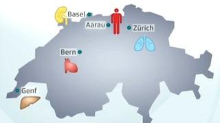 Transplantation - Der weite Weg der Organe