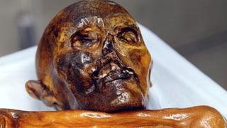 Gletschermann «Ötzi» plagte Karies