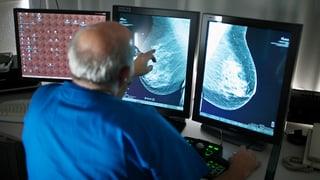 Experten streiten über Brustkrebs-Screening