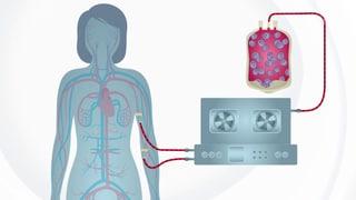 MS-Stammzelltherapie wird von Krankenkassen übernommen