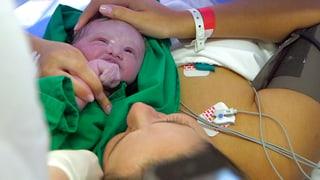 Video «Kaiserschnitt – die Geburt der Zukunft?» abspielen