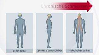 Chronischen Schmerzen Ausdruck verleihen