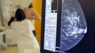 Fünf Mythen über Krebs