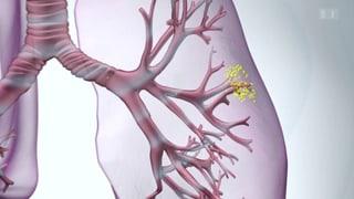 Mit Kortison gegen Lungenentzündung