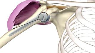 Verkehrte Prothese – Anders herum funktioniert die Schulter auch