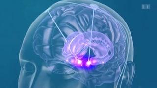 Mit Strom gegen die Epilepsie