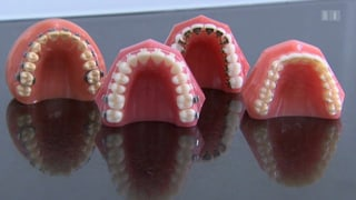 Zahnspangen richten's auch für Erwachsene