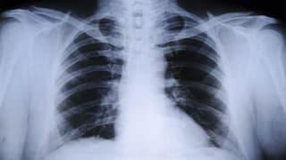 Suva will Asbest-Lungenkrebs schneller erkennen