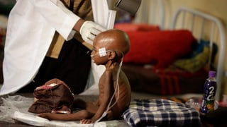 20 Millionen Menschen droht der Hungertod