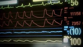 Video «Streit um den Hirntod - Organspende auf dem Prüfstand» abspielen