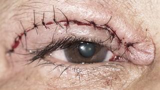 Schlupflid-OP – Augenlider unterm Messer