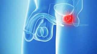 Video «Prostatakrebs, Arztrechnungen, Nobelpreis, Misophonie» abspielen