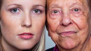 Hautzeichen des Alters