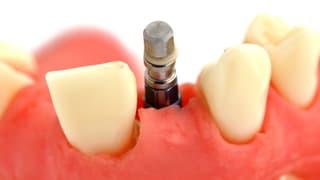 Video «Zahnimplantate, Diabetes-Checkups, Brille bei Farbsehschwäche» abspielen